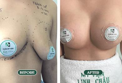 Ảnh dịch vụ nâng ngực nano chip ở Đà Nẵng