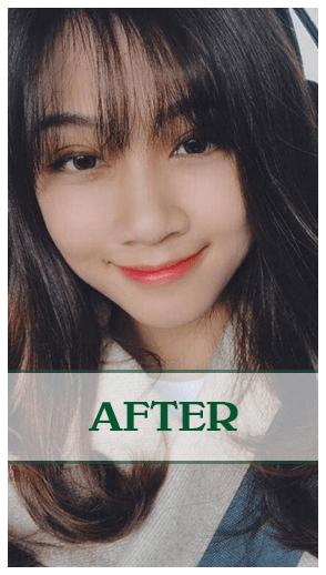 Ảnh kết quả của nâng mũi Soft-Form Dr Son Đà Nẵng