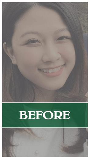 Kết quả của nâng mũi Soft-Form Dr Son tại Đà Nẵng