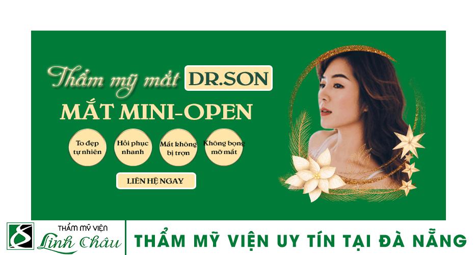 Dịch vụ thẩm mỹ mắt hai mí Mini Open uy tín tại thẩm mỹ viện Linh Châu Đà Nẵng