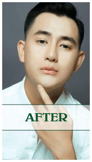 Kết quả của nâng mũi Soft-Form Dr Son ở Đà Nẵng