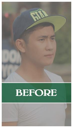 Kết quả của nâng mũi Soft Form Dr Son tại Đà Nẵng
