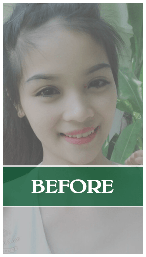 Kết quả của phẫu thuật nâng mũi Soft-Form Dr Son Đà Nẵng