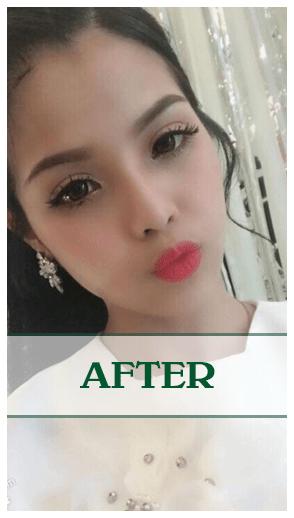Kết quả của phẫu thuật nâng mũi Soft-Form Dr Son ở Đà Nẵng