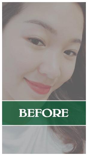 Kết quả của phẫu thuật nâng mũi Soft-Form Dr Son tại Đà Nẵng
