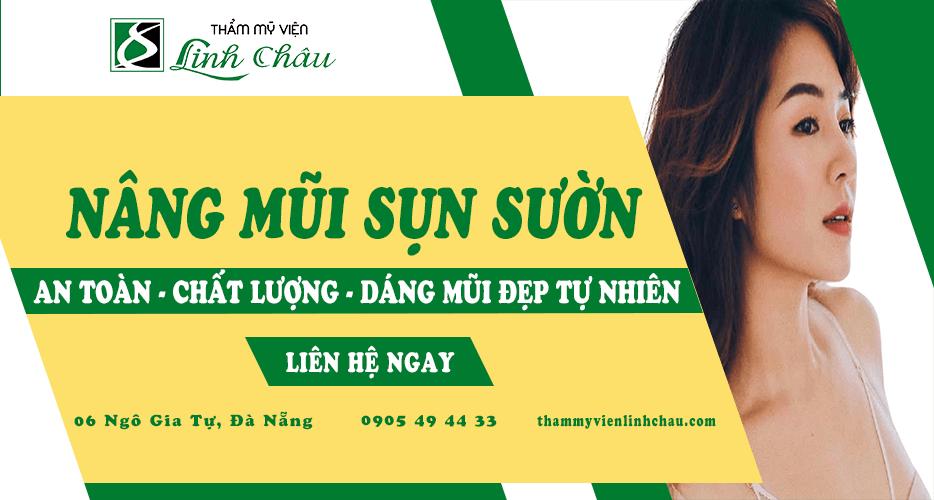 Dịch vụ nâng mũi sụn sườn uy tín tại Đà Nẵng