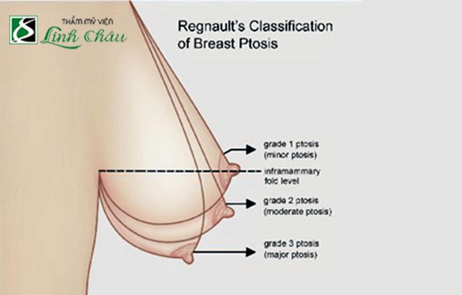 Mức độ ngực chảy xệ - phẫu thuật nâng ngực chảy xệ